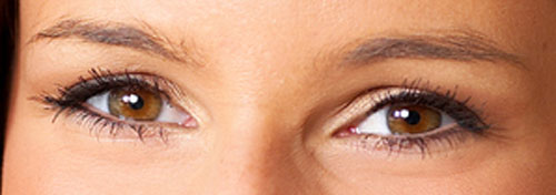 Bournemouth Botox Eye area example